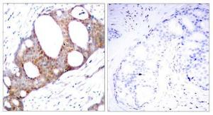 Immunohistochemical analysis of paraffin- embedded human breast carcinoma tissue using GSK3 alpha (phospho-Ser21) antibody (left) or the same antibody preincubated with blocking peptide (right)