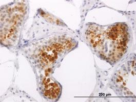 Anti-PPP1R2P3 Mouse Monoclonal Antibody