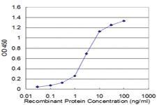 Anti-PPP2R2C Mouse Monoclonal Antibody