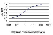Anti-TMPRSS15 Mouse Monoclonal Antibody