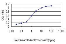 Anti-PSMB2 Mouse Monoclonal Antibody