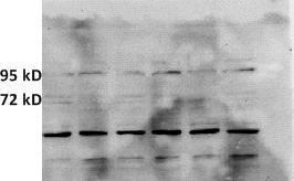 Western blot analysis of HMGCR using HMGCR (phospho-Ser872) antibody [Reviews]