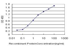 Anti-PTF1A Mouse Monoclonal Antibody