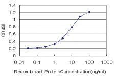 Anti-RAB26 Mouse Monoclonal Antibody