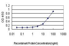 Anti-RAD17 Mouse Monoclonal Antibody