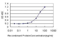 Anti-RAMP1 Mouse Monoclonal Antibody