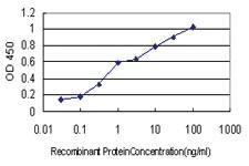 Anti-RARB Mouse Monoclonal Antibody