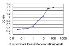 Anti-UBR4 Mouse Monoclonal Antibody