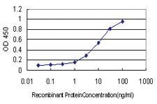 Anti-RNASEL Mouse Monoclonal Antibody