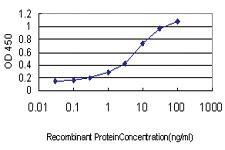 Anti-RNF125 Mouse Monoclonal Antibody
