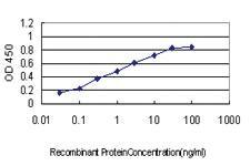 Anti-RNF20 Mouse Monoclonal Antibody
