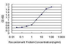 Anti-RPS2 Mouse Monoclonal Antibody
