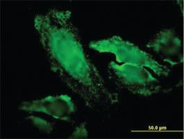 Anti-RPS7 Mouse Monoclonal Antibody