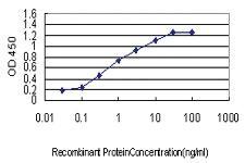 Anti-S100A2 Mouse Monoclonal Antibody