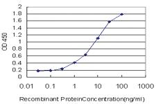 Anti-SCN2B Mouse Monoclonal Antibody