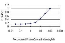 Anti-AIMP1 Mouse Monoclonal Antibody