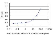 Anti-SERPINA6 Mouse Monoclonal Antibody