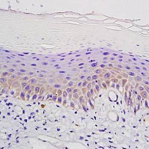 IHC-P of mouse skin tissue using mu Opioid receptor antibody