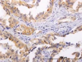 Anti-SERPINH1 Mouse Monoclonal Antibody