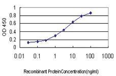Anti-SF1 Mouse Monoclonal Antibody