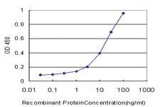Anti-SGCB Mouse Monoclonal Antibody