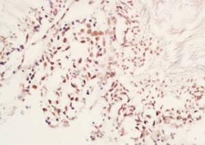 Immunohistochemical analysis of formalin-fixed paraffin embedded rat testis tissue using MAP1LC3A (phospho-Ser12) antibody (dilution at 1:200)