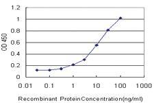 Anti-SLC1A2 Mouse Monoclonal Antibody