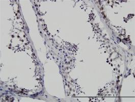 Anti-SMNDC1 Mouse Monoclonal Antibody