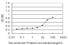 Anti-SOCS3 Mouse Monoclonal Antibody