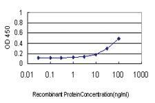 Anti-SOCS6 Mouse Monoclonal Antibody