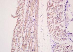Anti-MYL6 Rabbit Polyclonal Antibody