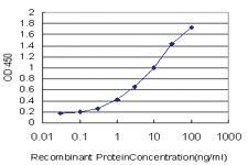 Anti-SREBF1 Mouse Monoclonal Antibody