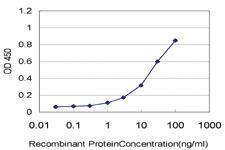 Anti-ST14 Mouse Monoclonal Antibody