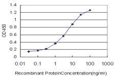 Anti-TBL1X Mouse Monoclonal Antibody