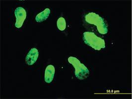Anti-TBX3 Mouse Monoclonal Antibody