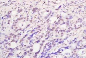 Immunohistochemical analysis of formalin-fixed paraffin embedded human colon carcinoma tissue using TIF1 Alpha antibody (dilution at 1:200)