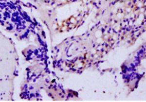 IHC-P of rat colitis tissue (TNF-alpha antibody at 1:300)