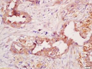 Immunohistochemical staining of human lung carcinoma tissue using CD21 antibody.