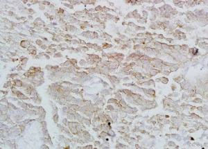 Immunohistochemical analysis of formalin-fixed paraffin embedded rat lung tissue using Annexin VI antibody (dilution at 1:200)