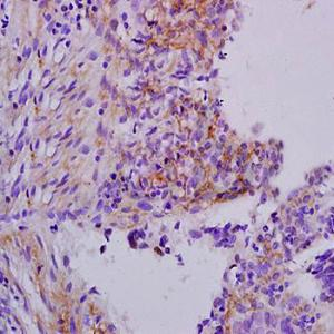Immunohistochemical analysis of formalin-fixed and paraffin embedded human laryngeal cancer tissue (dilution at:1:200) using Apolipoprotein H antibody