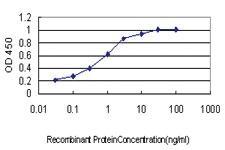 Anti-TIAM2 Mouse Monoclonal Antibody