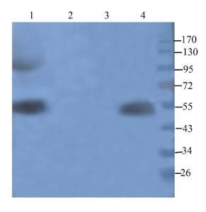 Western blot analysis of human breast tumour (lane 1), hela cells (lane 2),rat pancreas (lane 3),rat colon (lane 4) using Cathepsin G antibody (1 ug/ml)