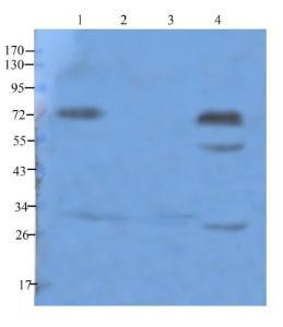 Western blot analysis of rat spleen (lane 1), rat stomach (lane 2), rat lung (lane 3), rat thymus (lane 4) using Cathepsin G antibody (1 ug/ml)