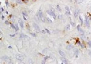 Immunohistochemical analysis of formalin-fixed paraffin embedded human hepatitides tissue using CCR4 antibody (dilution at 1:200)