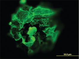 Anti-TP53 Mouse Monoclonal Antibody
