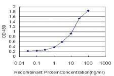 Anti-TRAPPC2 Mouse Monoclonal Antibody