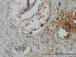 Anti-TRIM49 Mouse Monoclonal Antibody