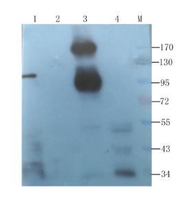 Western blot analysis of mouse liver (lane 1), rat lung (lane 2), rat uterus (lane 3), rat spleen (lane 4) using CD45 antibody (1 ug/ml)