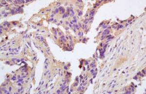 Immunohistochemical analysis of formalin-fixed paraffin embedded rat brain tissue using ChRM2 antibody (dilution at 1:200)