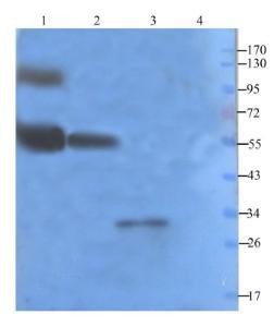 Western blot analysis of human breast tumour (lane 1), mouse lymph node (lane 2), mouse spinal cord (lane 3),rat lung (lane 4) using Claudin 5 antibody (1 ug/ml)